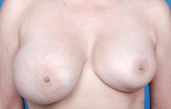 Kapseldannelse ved brystforstørrelse