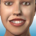Introduktion til kosmetisk tandkødsbehandling