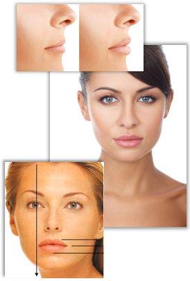 Alt om læbeforstørrelse (læbeoperation)