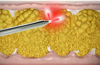Hudopstamning ved fedtsugning med laser