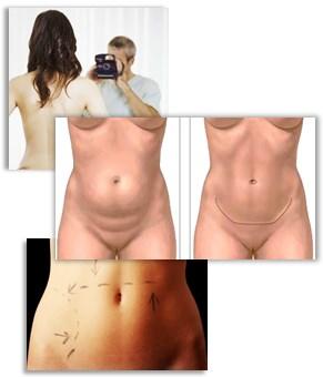 Alt om maveskindsoperation (abdominalplastik)