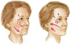 ansigtsløft med tråde