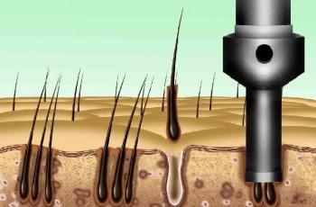 Metoder for hårtransplantation