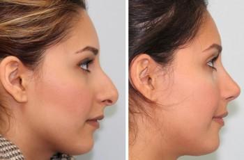 Billeder før & efter næsekorrektion
