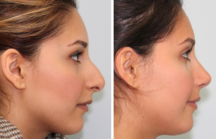 implantater før og efter sex slagelse