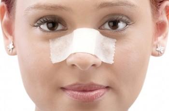 Tiden efter en næsekorrektion