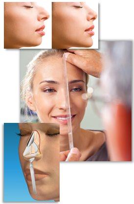 Muligheder og begrænsninger ved næsekorrektion (næseoperation)