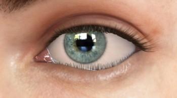 Hængende nedre øjenlåg (ektropion)