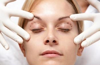 Introduktion till øjenlågsoperation