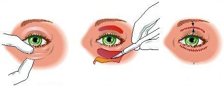 Snit ved øjenlågskirurgi