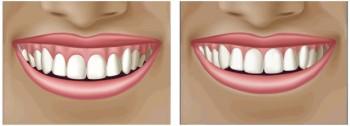 Fjernelse af overskud af tandkødet
