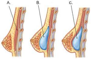 Placering af implantaterne - over eller under musklen