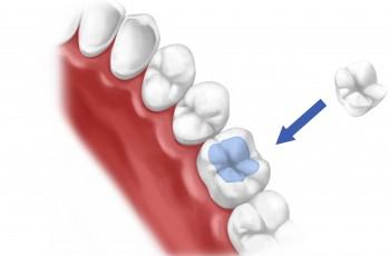 Alt om tandfyldninger