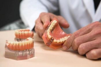 Risici og komplikationer i forbindelse med tandimplantater