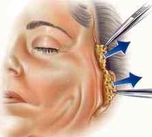 Strækning af væv ved en ansigtsløftning