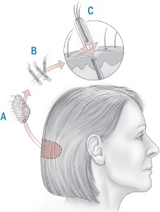 hårtransplantation – FUE/FUT eller STRIP