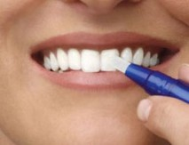 Tandblegnings skinner fungerer bedst