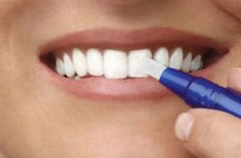 Hjemmeblegning - enkel og billig tandblegning