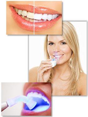 bleg tænder
