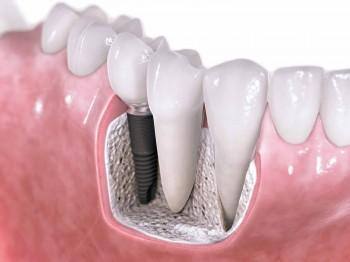 Studierne viser, at 95% af kontrollerede implantater fungerer uden anmærkninger efter en periode på 10 år.