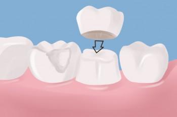 Sådan bliver en tandkrone sat ind