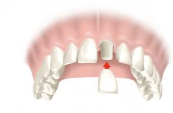 Alt om tandkroner