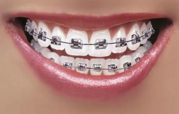 1. Fast – Tandbøjler (togskinner)