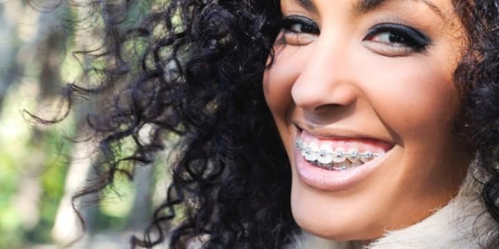 Alt om tandregulering<br> med tandbøjler