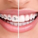 Introduktion til tandretning
