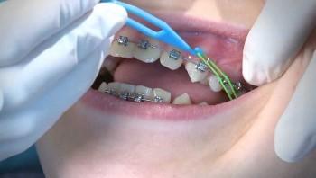 3. Tandretning - Installation og efterfølgende besøg