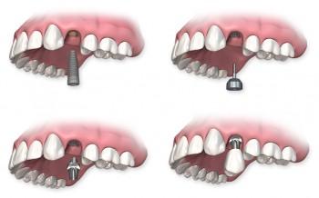 Sådan foregår en behandling med tandimplantater